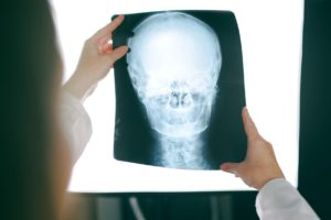 What is the Average Settlement for a Traumatic Brain Injury in California?